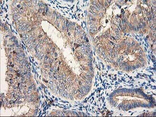 CDKN3 Antibody in Immunohistochemistry (Paraffin) (IHC (P))