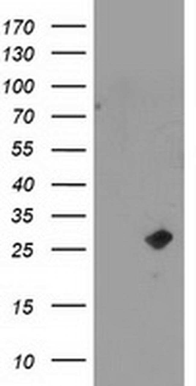 CDKN3 Antibody in Western Blot (WB)