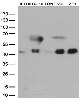 CDX2 Antibody in Western Blot (WB)