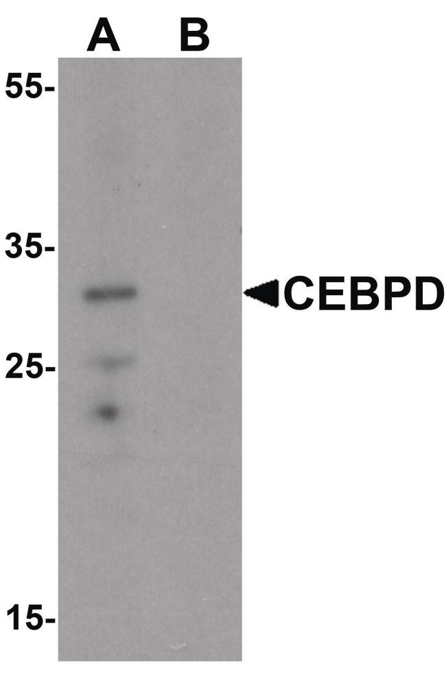 C/EBP delta Antibody in Western Blot (WB)