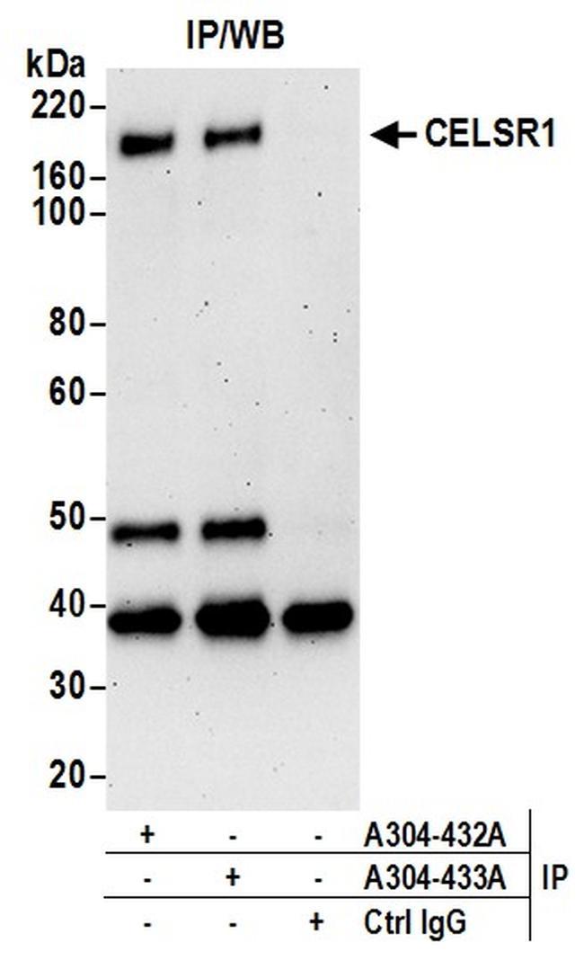 CELSR1 Antibody in Western Blot (WB)