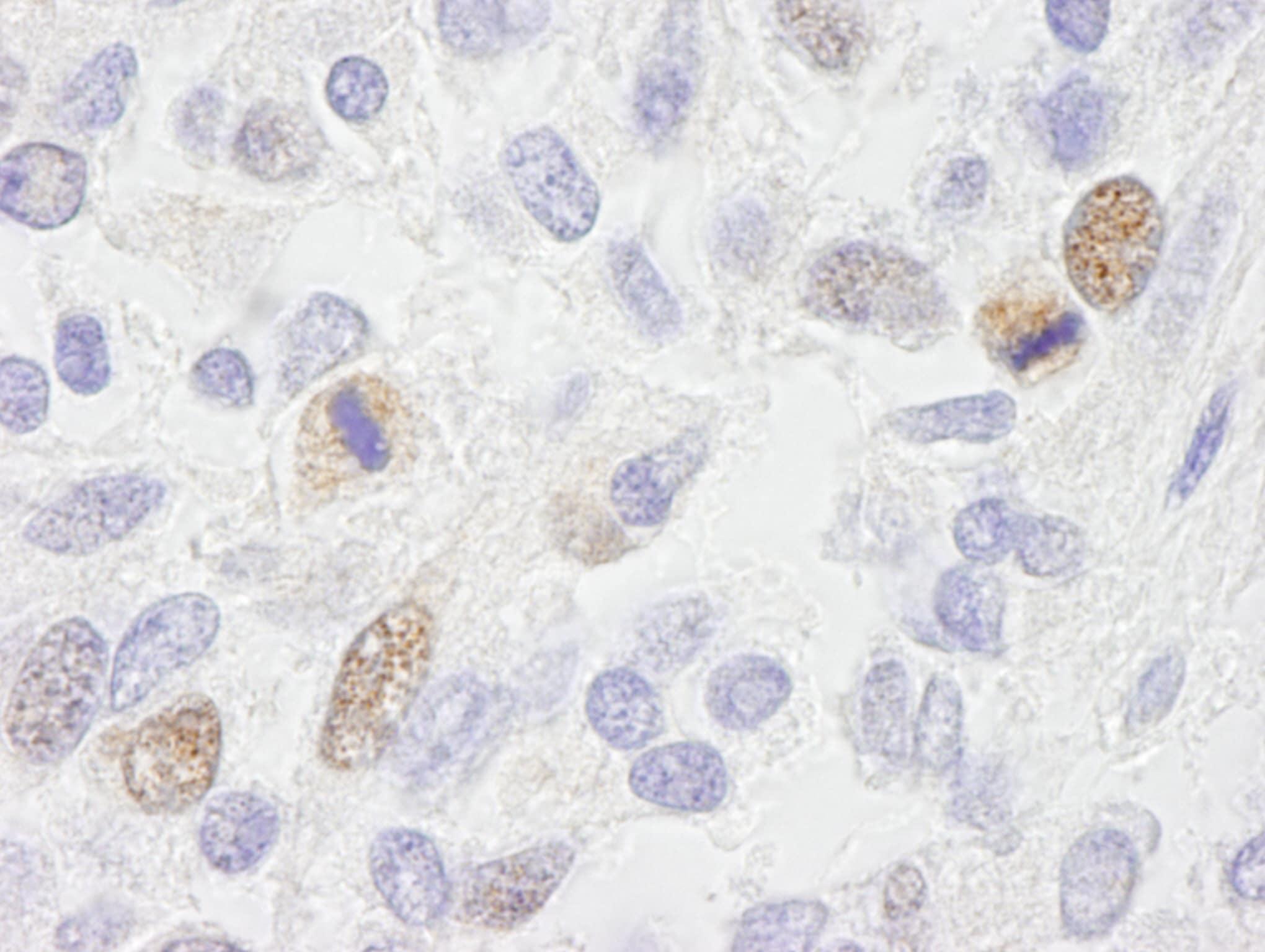CENP-F/Mitosin Antibody in Immunohistochemistry (IHC)
