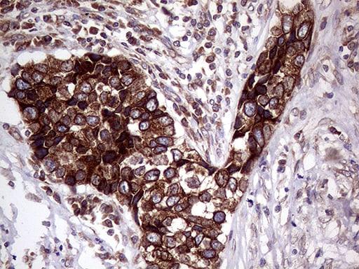 CERS2 Antibody in Immunohistochemistry (Paraffin) (IHC (P))