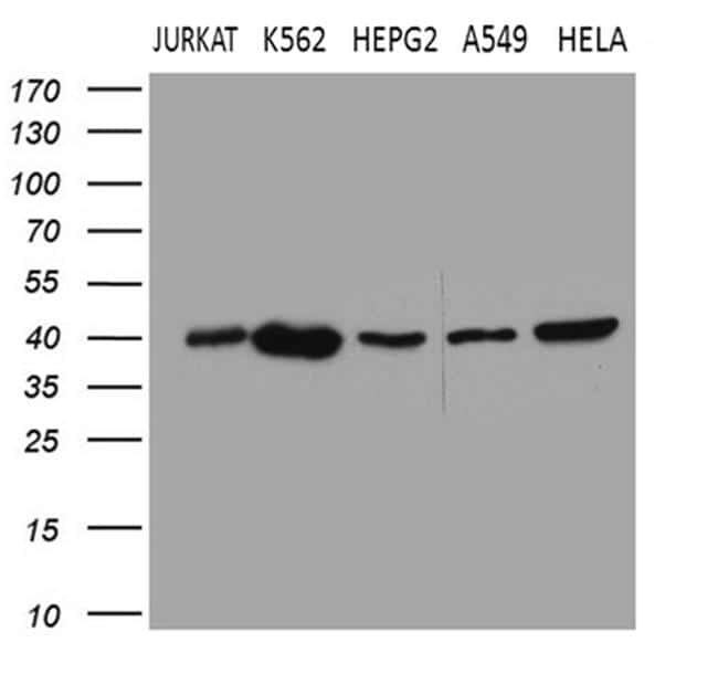 CERS2 Antibody in Western Blot (WB)