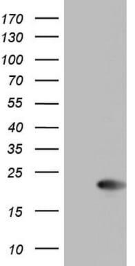 CETN1 Antibody in Western Blot (WB)