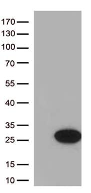 Cytoglobin (CYGB) Antibody in Western Blot (WB)