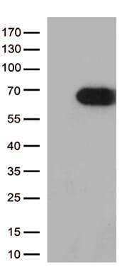USH1C Antibody in Western Blot (WB)