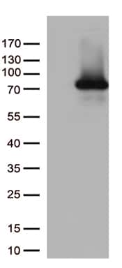 PDZK1 Antibody in Western Blot (WB)