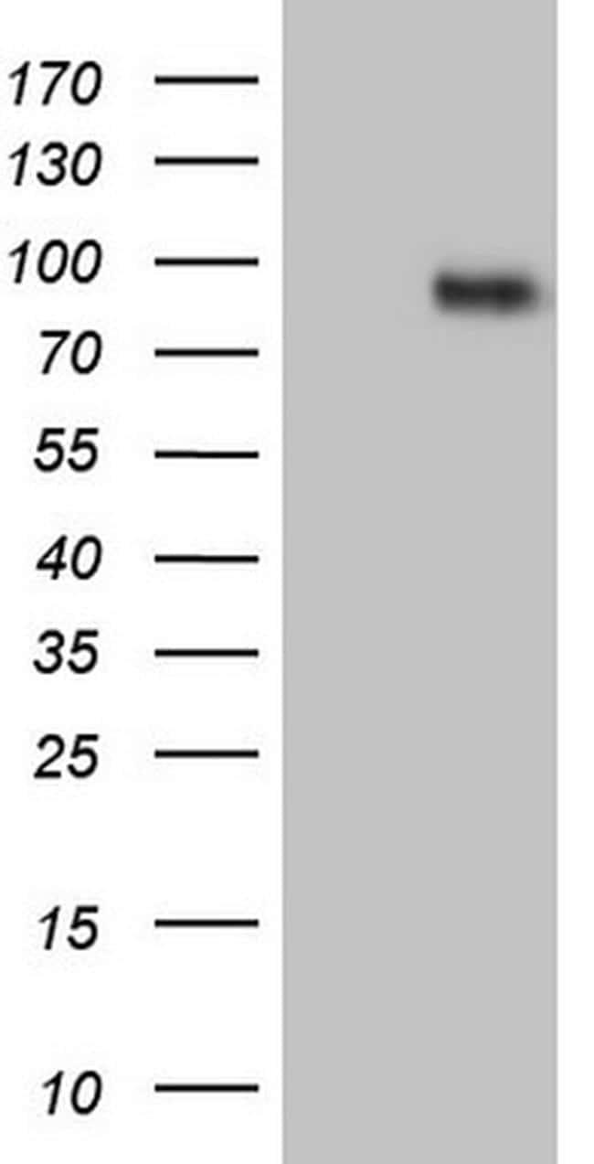 CFI Antibody in Western Blot (WB)