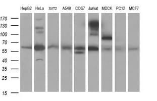 CHAF1B Antibody in Western Blot (WB)