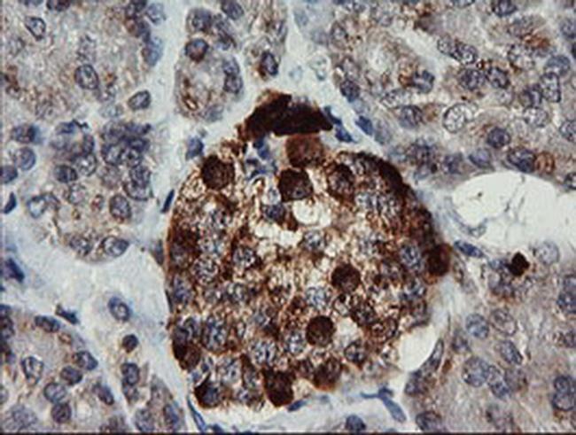 CHGA Antibody in Immunohistochemistry (Paraffin) (IHC (P))