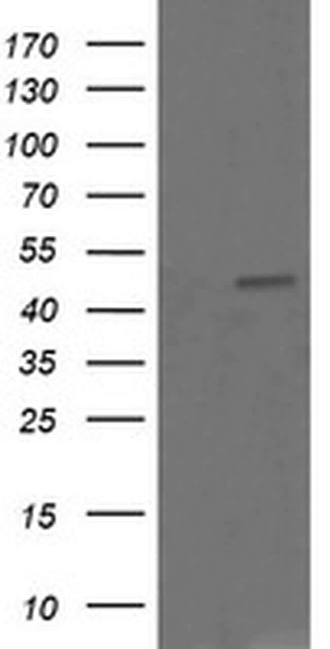 CHGA Antibody in Western Blot (WB)