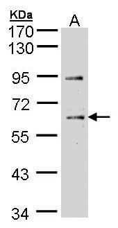 Chk1 Antibody in Western Blot (WB)