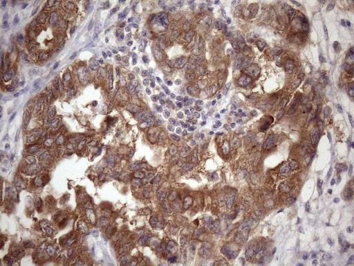 CHMP5 Antibody in Immunohistochemistry (Paraffin) (IHC (P))