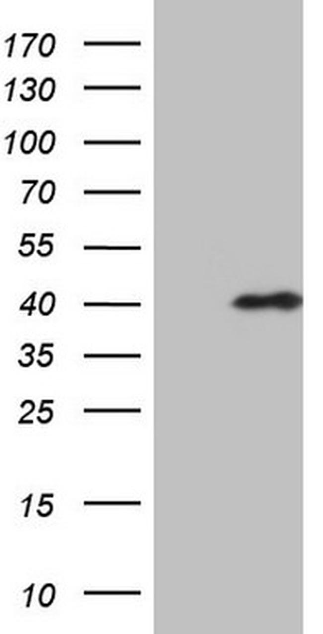 CHMP5 Antibody in Western Blot (WB)