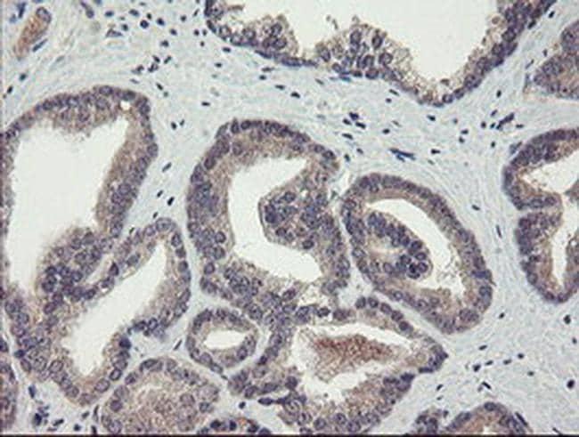 CHN1 Antibody in Immunohistochemistry (Paraffin) (IHC (P))
