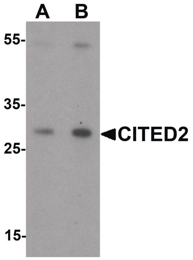 CITED2 Antibody in Western Blot (WB)