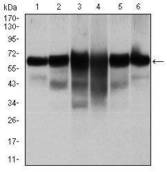 Cytokeratin 5 Antibody in Western Blot (WB)