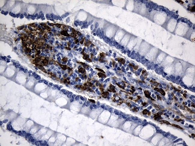 CLEC4M Antibody in Immunohistochemistry (Paraffin) (IHC (P))
