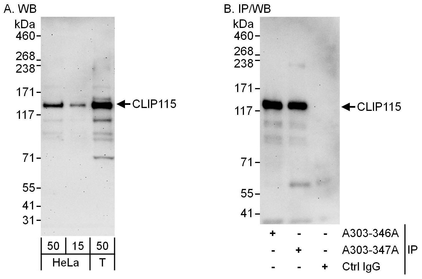 CLIP115 Antibody in Western Blot (WB)