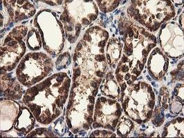 CLPP Antibody in Immunohistochemistry (Paraffin) (IHC (P))