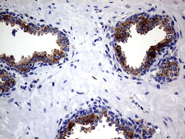 CLTA Antibody in Immunohistochemistry (Paraffin) (IHC (P))