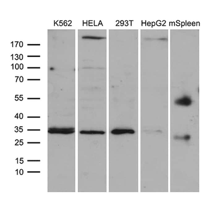 CLTA Antibody in Western Blot (WB)