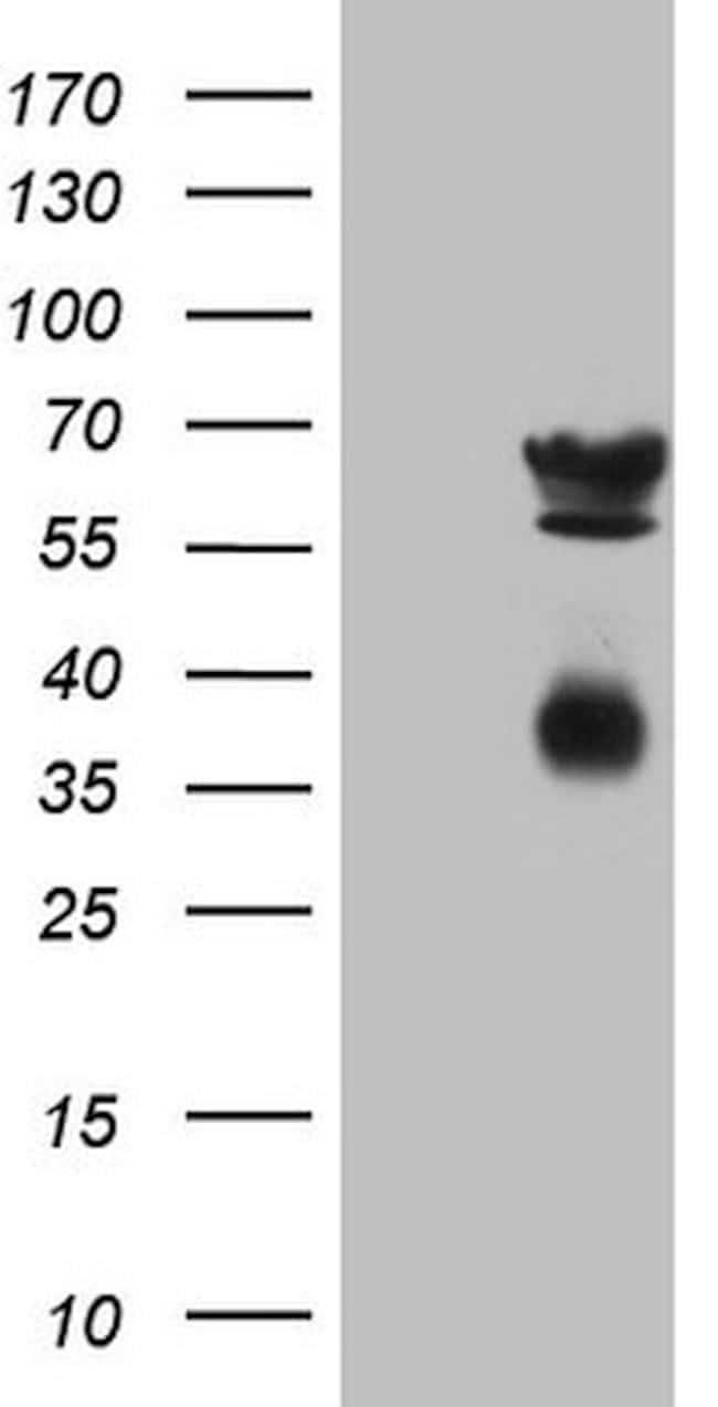 CLU Antibody in Western Blot (WB)
