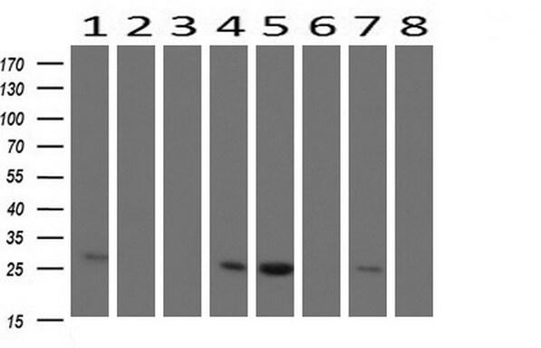 CMPK1 Antibody in Western Blot (WB)