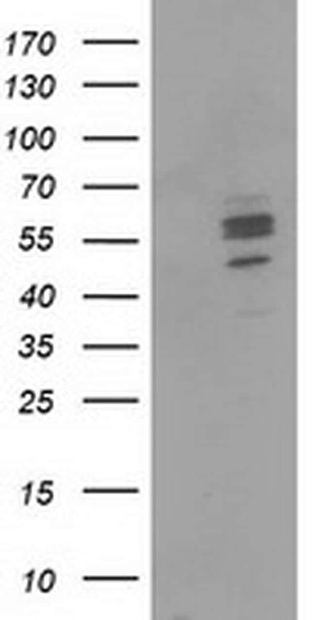 CNDP1 Antibody in Western Blot (WB)