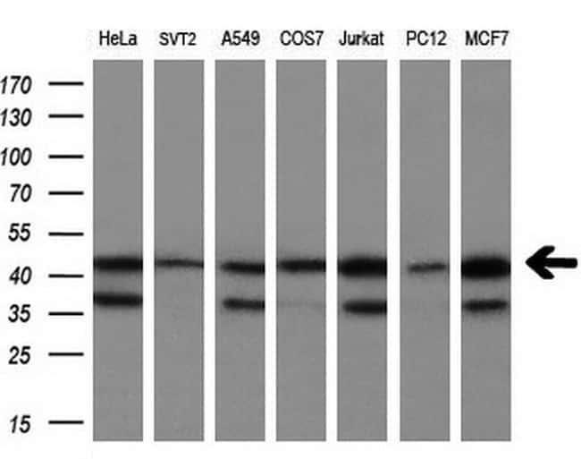CNDP2 Antibody in Western Blot (WB)