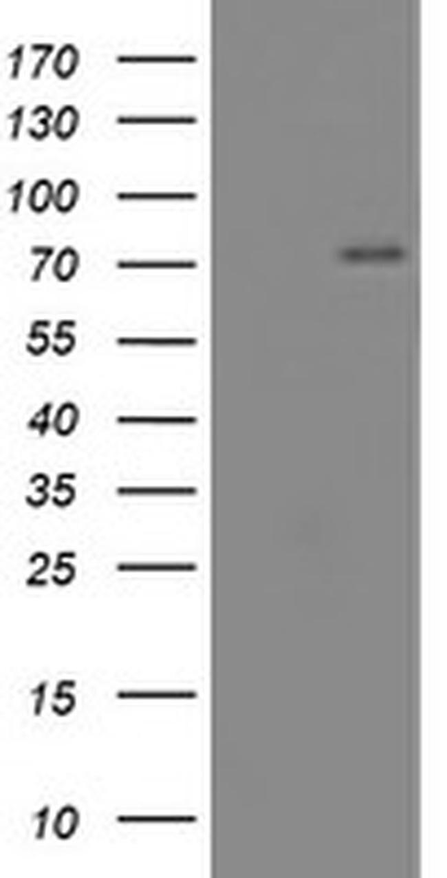 CNOT4 Antibody in Western Blot (WB)