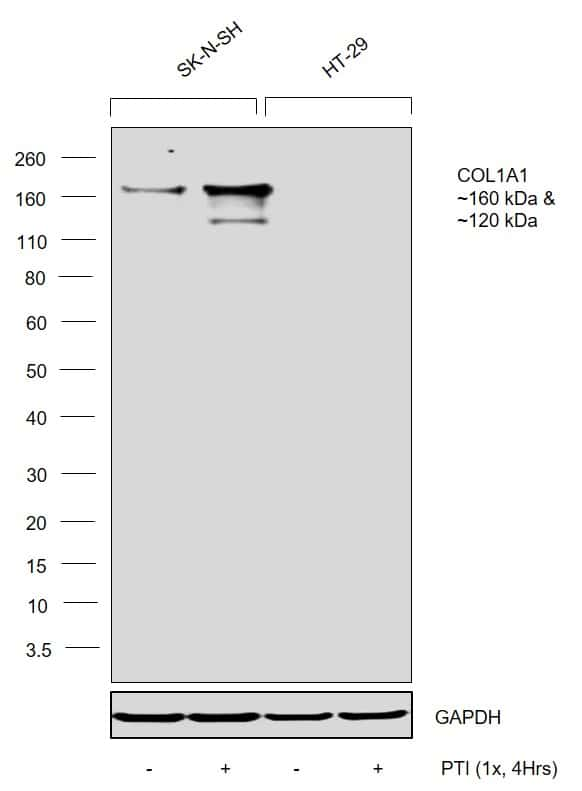 COL1A1 Antibody in Relative expression