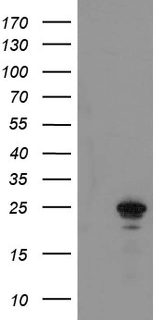 COMMD1 Antibody in Western Blot (WB)