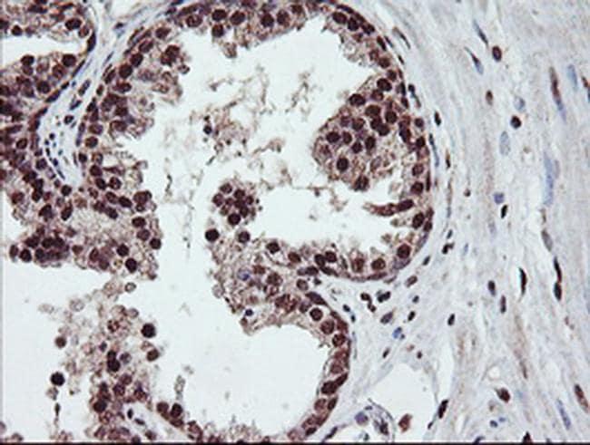 COPS5 Antibody in Immunohistochemistry (Paraffin) (IHC (P))