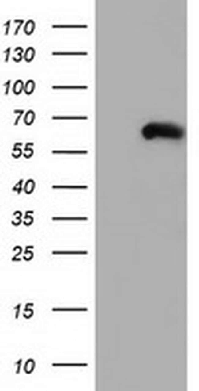 CORO1B Antibody in Western Blot (WB)