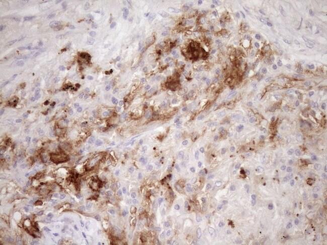 CPM Antibody in Immunohistochemistry (Paraffin) (IHC (P))