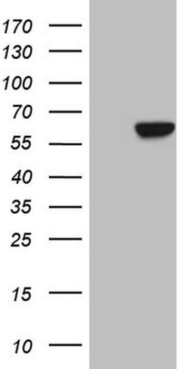 CPM Antibody in Western Blot (WB)
