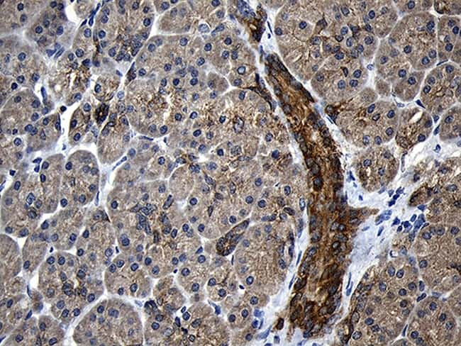 CPT1B Antibody in Immunohistochemistry (Paraffin) (IHC (P))