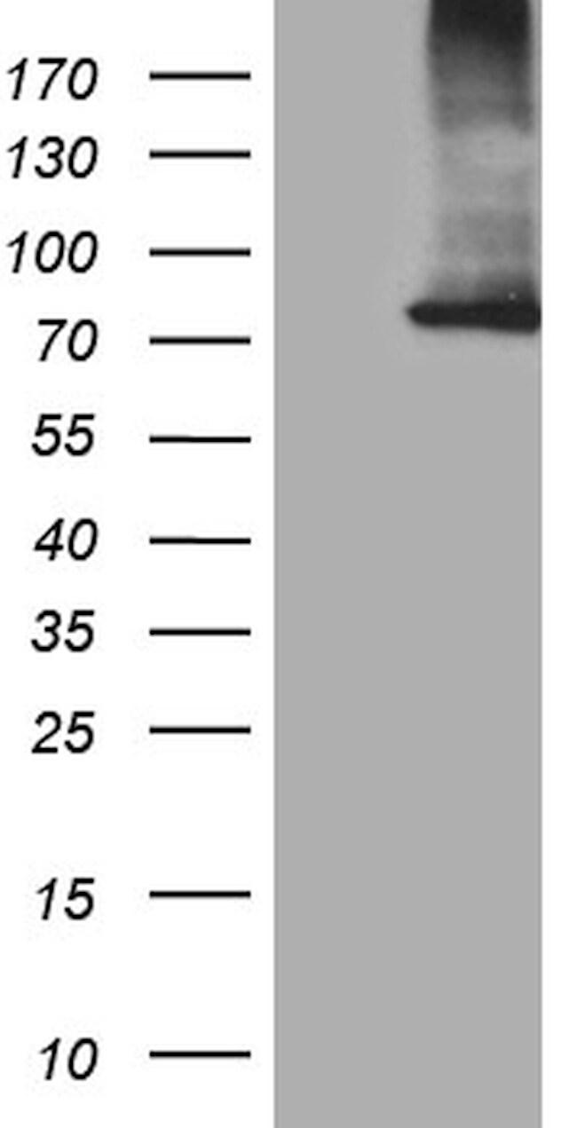 CPT1B Antibody in Western Blot (WB)