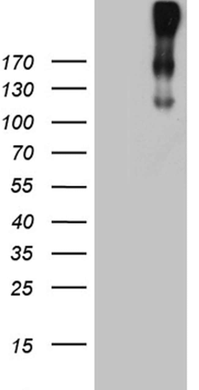 CR1 Antibody in Western Blot (WB)