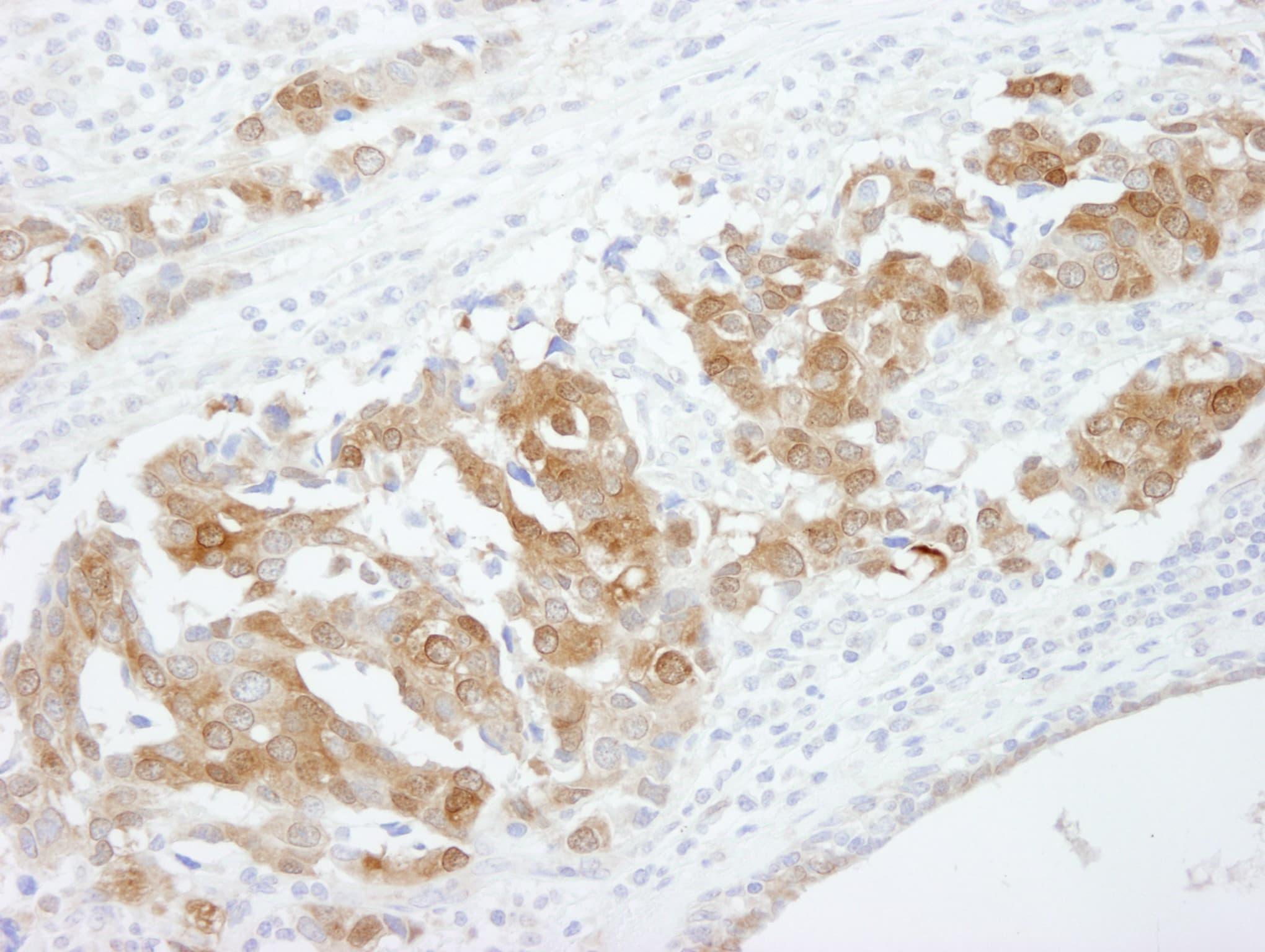 CRABP2 Antibody in Immunohistochemistry (IHC)