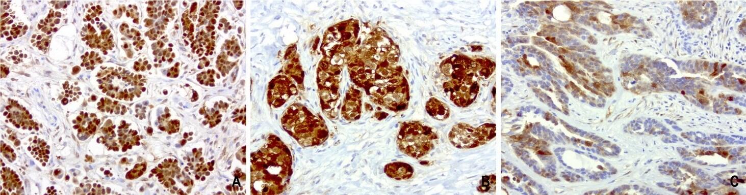 CRABP2 Antibody in Immunohistochemistry (Paraffin) (IHC (P))