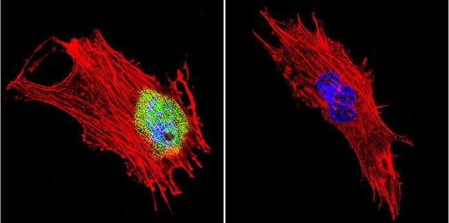 CRABP1 Antibody in Immunofluorescence (IF)