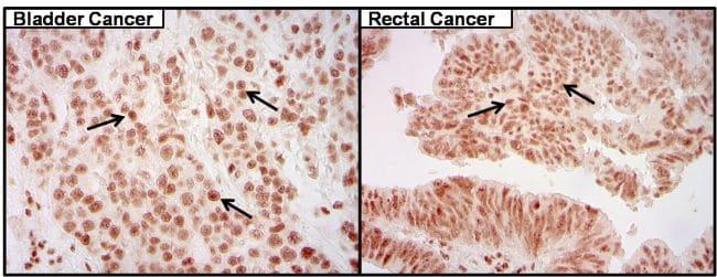 CREB Antibody in Immunohistochemistry (IHC)