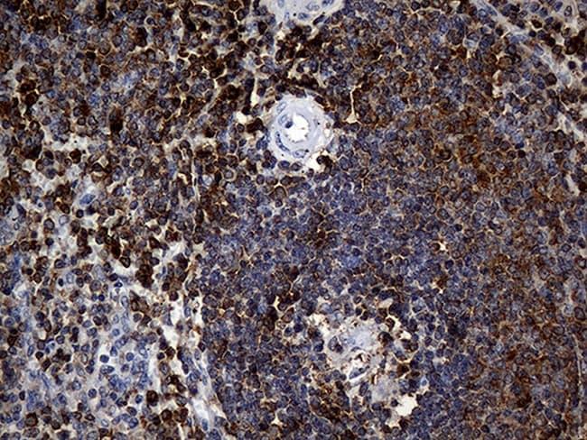CRLF3 Antibody in Immunohistochemistry (Paraffin) (IHC (P))