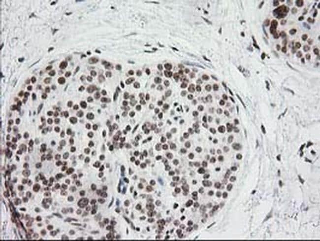 CRY2 Antibody in Immunohistochemistry (Paraffin) (IHC (P))