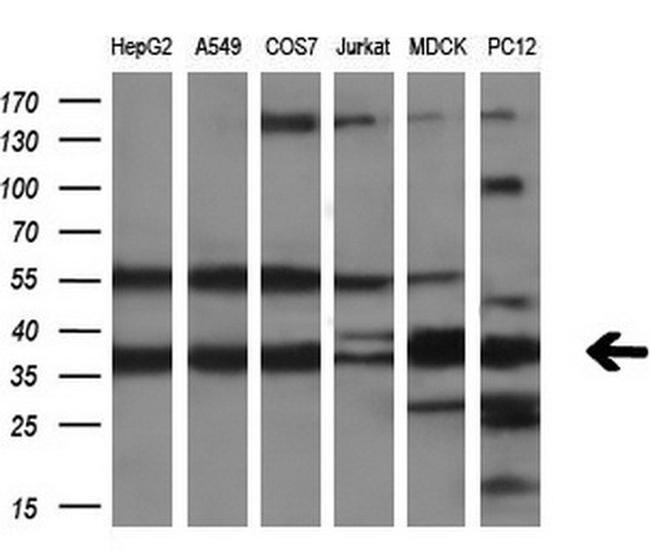 CRYM Antibody in Western Blot (WB)