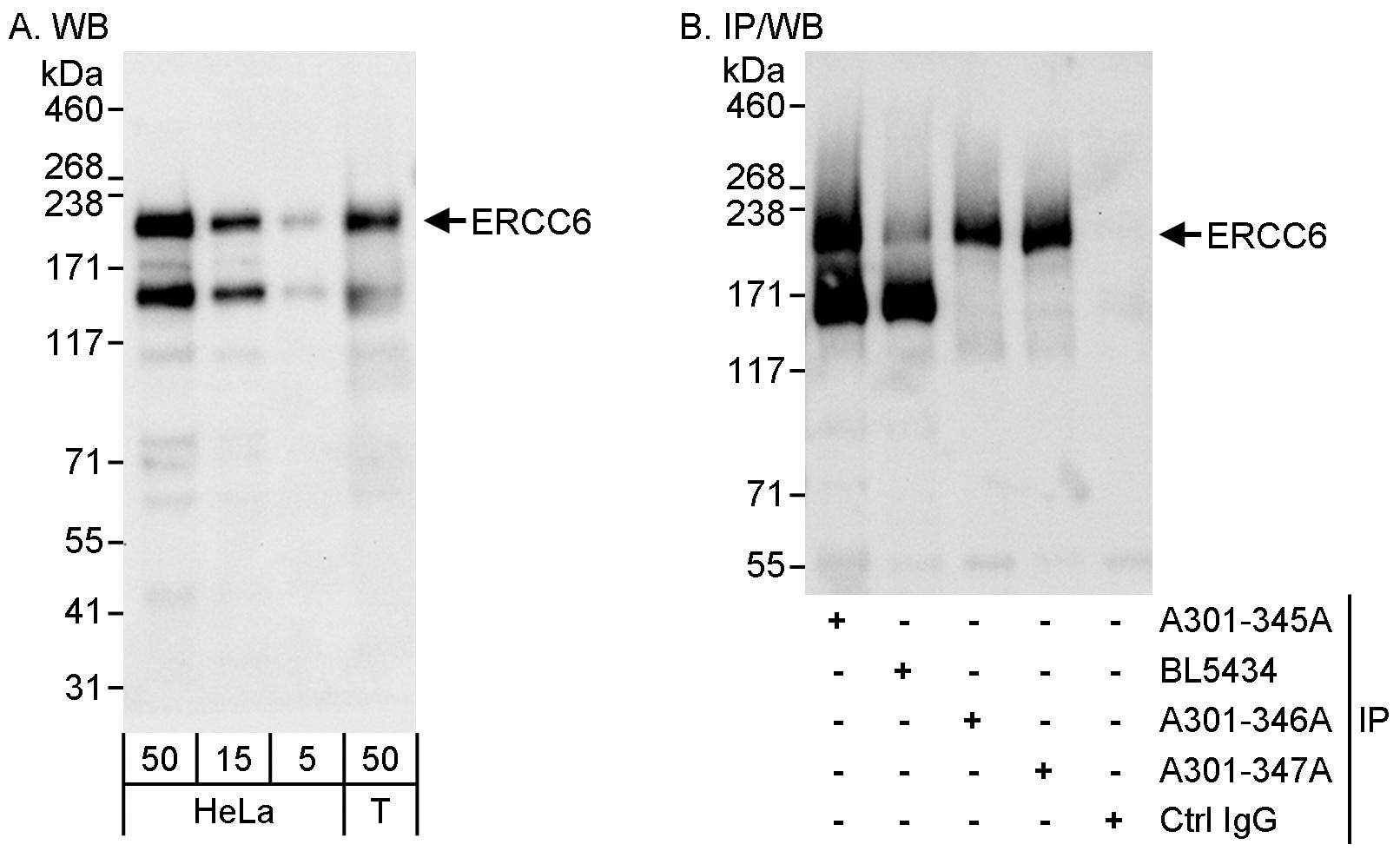 CSB/ERCC6 Antibody in Western Blot (WB)