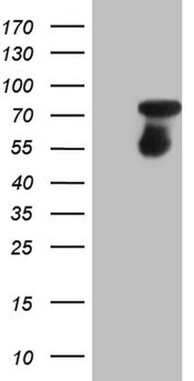 CSF1 Antibody in Western Blot (WB)